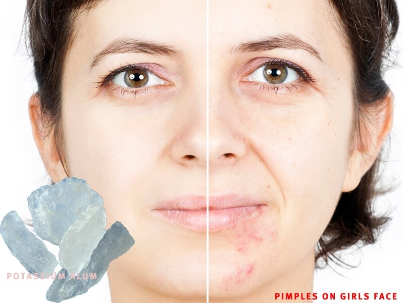 Pimples on face removal tips in hindi