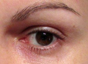 Eye Puffiness