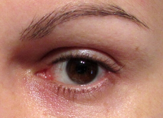 Causes Solutions and Remedies For Puffiness Under Eyes