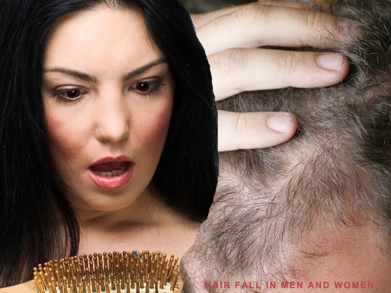 Hair Fall in Men and Women