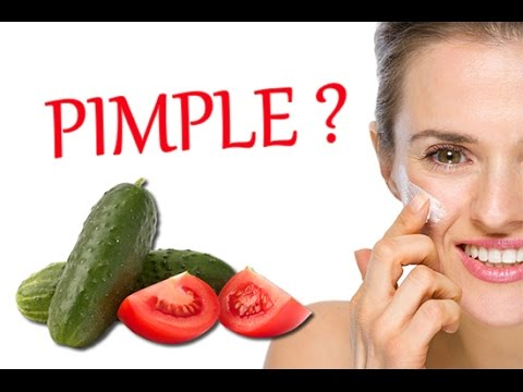 hard pimples causes treatment and more healthline - 480×360