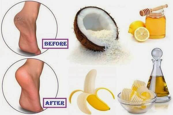 Cracked Heels Remedies at Home