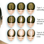 Types of Hair Loss or Alopecia