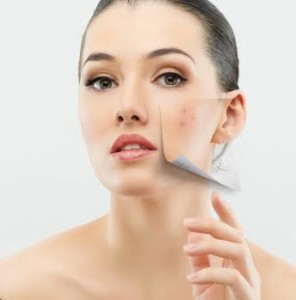 Acne can be controlled by following homemade remedies.
