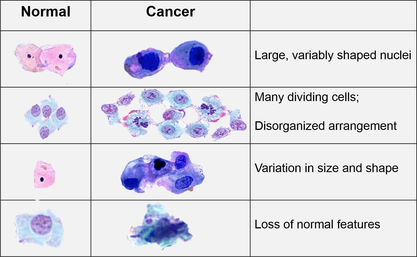 How Cancer Occurs And What Are The Types Of Cancer Cells
